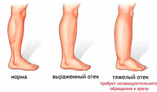 Отек ног: источник: fdoctor.ru