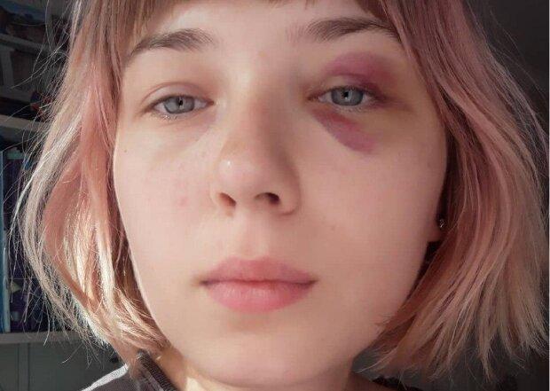 """Неадекватна киянка побила юних дівчаток і відкрила полювання на ЛГБТ: """"У цієї Маші двоє дітей"""""""