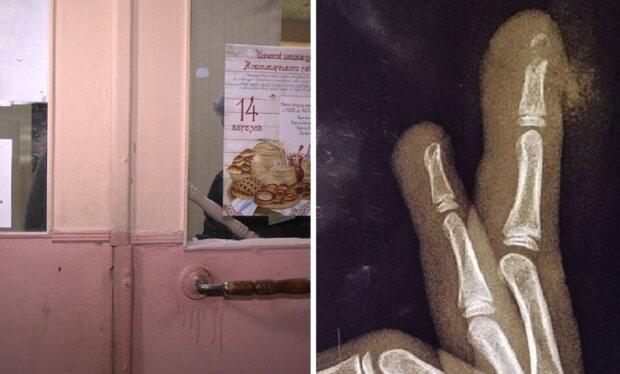 Девочка сломала палец в школе: Суспільне