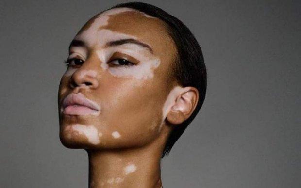 Її називали коровою... через колір шкіри: історія успіху неймовірної моделі