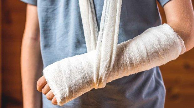 Топ-5 міфів про переломи