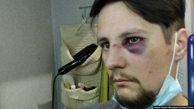 пострадавший Андрей Мочурад, фото radiosvoboda