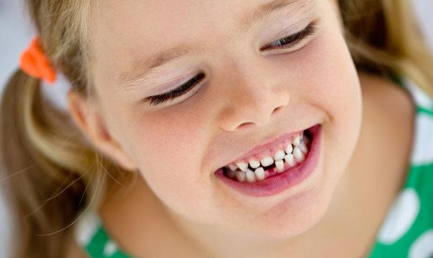 Серце, легені і не тільки: яким органам шкодять криві зуби