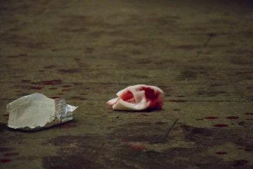 У центрі Києва жорстоко почикрижили чоловіка: ледве доповз до метро