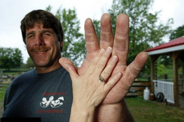 Мужчина родился с гигантскими руками, один его бицепс в обхвате – 49 см. Позавидует сам моряк Папай