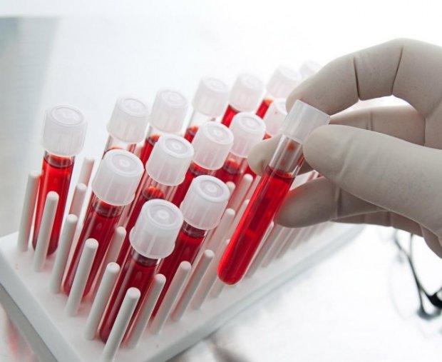 Рак молочної залози навчилися виявляти за аналізом крові