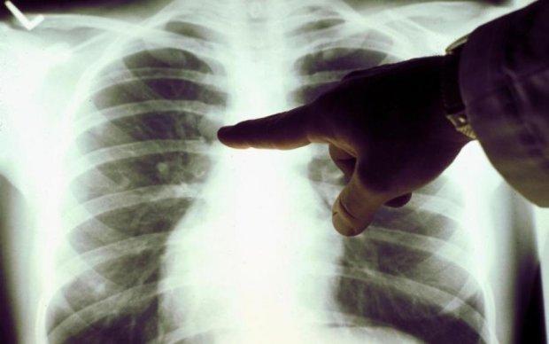 Диагностика и лечение рака: советы экспертов, которые могут спасти вам жизнь