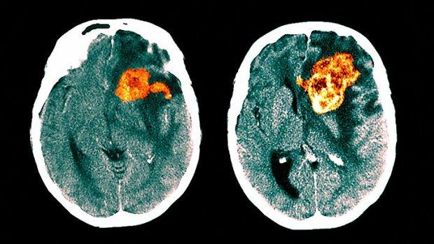 Вірус Зіка допоможе перемогти смертельну хворобу