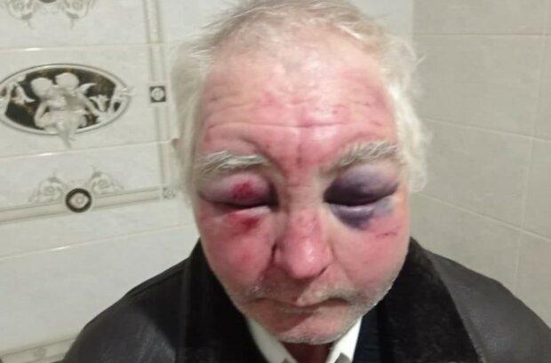 На Буковине избили 63-летнего прихожанина