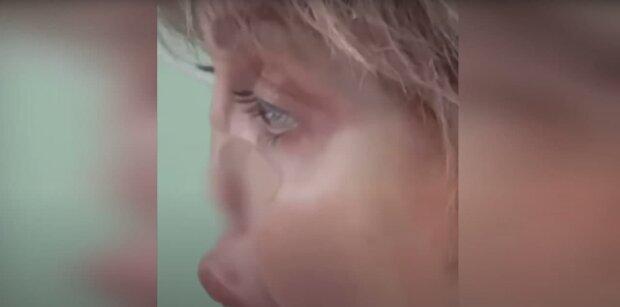 Бывшая Аршавина может погибнуть после потери носа: болезнь развилась после развода