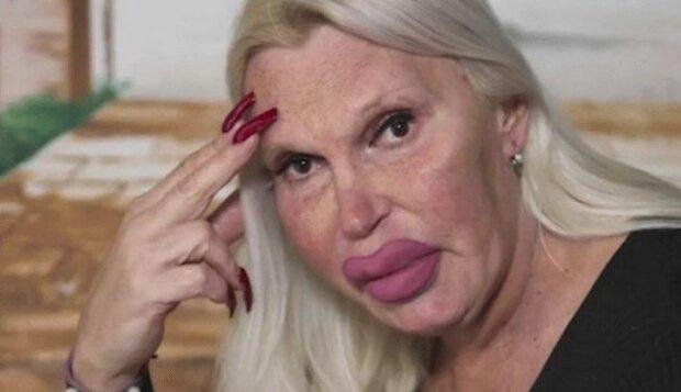 """Красавица потратила тысячи долларов на """"идеальное лицо"""" и превратилась в Майкла Джексона: фото не для слабонервных"""