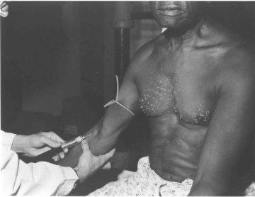 Моторошні сторінки історії: найжорстокіші медичні експерименти, коли людину перетворювали у лабораторного щура