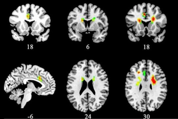 Вчені дослідили вплив кохання на мозок