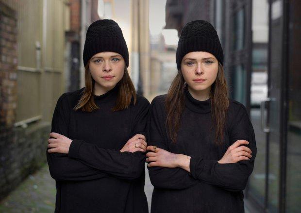 Одна привычка сделала идентичных близнецов совершенно разными: эти фото изменят вашу жизнь