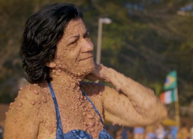 Не надо стесняться: женщина с жуткой опухолью на пол-лица показала вдохновляющий пример