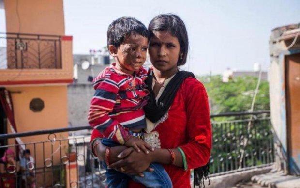 Ребенка облили кислотой за отказ матери выйти замуж