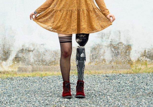 Справа не в мені: молода дівчина незвичайним чином попрощалася зі своєю ногою