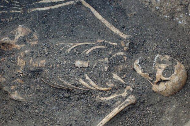 Искривления костей и деформация черепа: ученые обнаружили страшные аномалии у древних людей