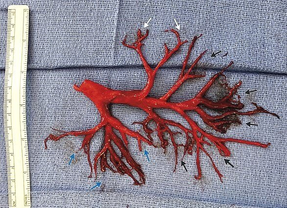 Сгусток крови, фото - NEJM