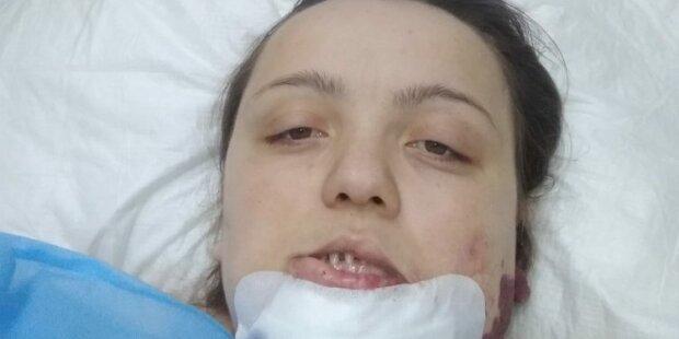 """Родима пляма поставила під загрозу життя багатодітної матері: """"Позаду три операції, попереду - ще дві"""""""