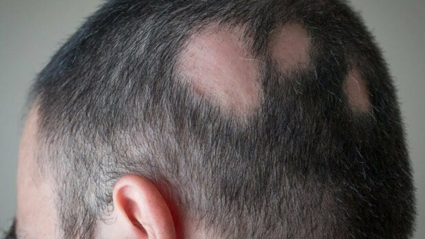 Стригучий лишай, що варто про нього знати, як передається це шкірне захворювання