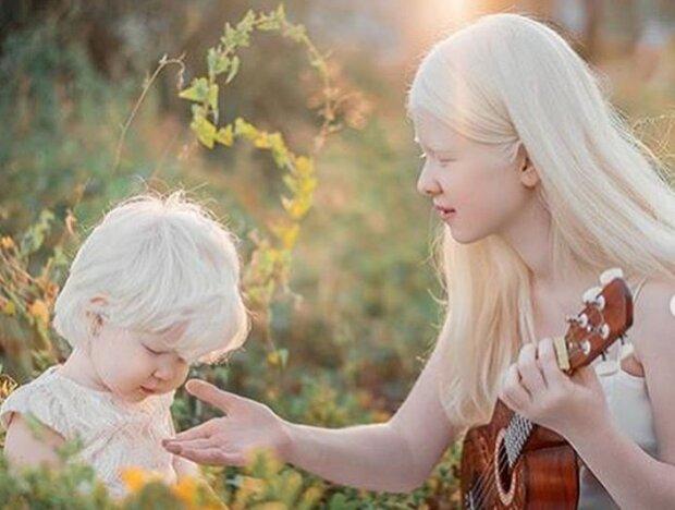 Очаровательные сестрички-альбиносы замиловали мир уникальной красотой: как фарфоровые куклы