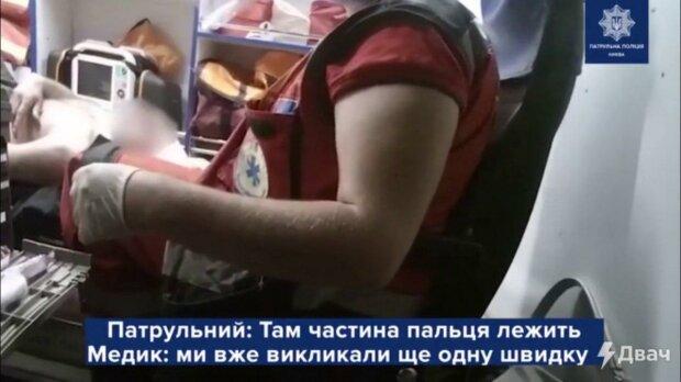 В Киеве голый мужик откусил отцу палец, разбил собакой окно и избил соседа лопаткой для обуви