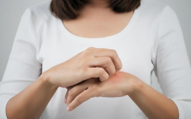 Як позбутися сверблячки після укусу комара: 6 простих порад