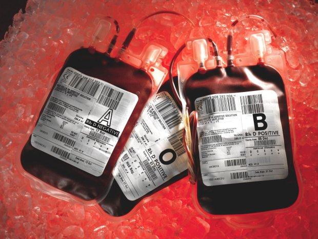 """Хворобу Паркінсона вирішили лікувати переливанням """"молодої крові"""""""