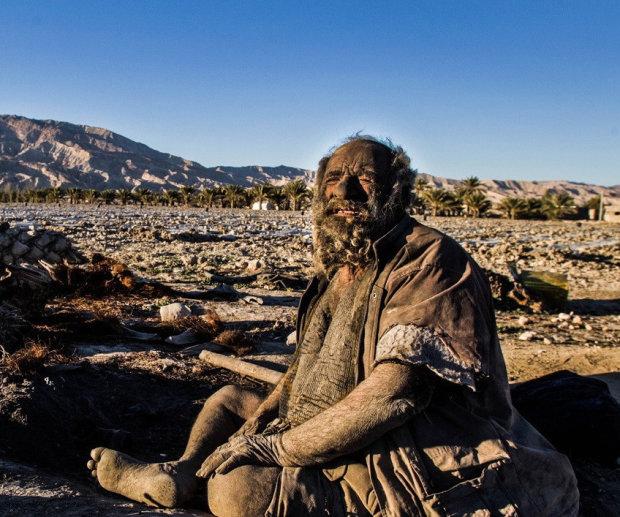 """Його прозвали """"грязнульою"""": історія чоловіка, який не мився 60 років"""