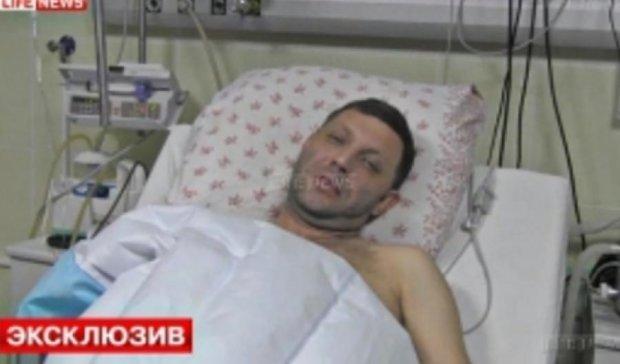 ЗМІ: Захарченко поранений у голову і не впізнає рідних