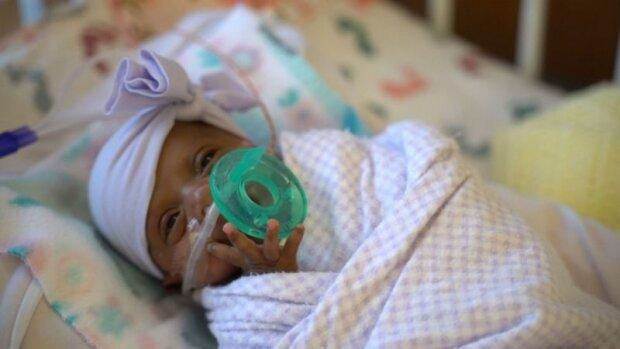 """""""Найменша у світі"""" недоношена дитина, фото bbc.com"""