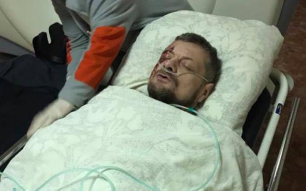 """Операции и дорогостоящее лечение: """"Знай"""" выяснил, как себя чувствует нардеп Мосийчук"""