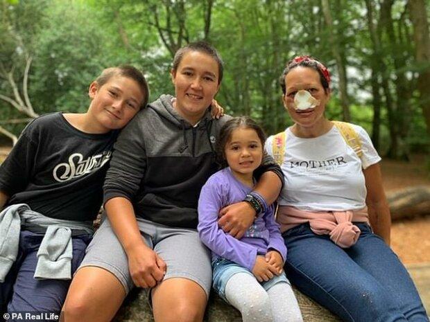 """Прийшла до лікаря із """"застудою"""" і почула страшний діагноз: матері трьох дітей відрізали ніс"""