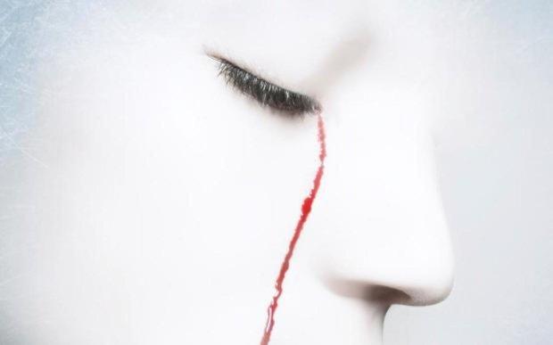 Кров з очей: рідкісне захворювання застало лікарів зненацька
