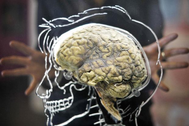 Получи ответ: правда ли, что большие мозги опасны для здоровья
