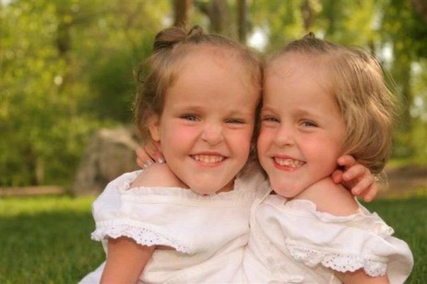 Как выглядят и чем живут самые знаменитые сиамские близнецы через 13 лет после разделения: фото
