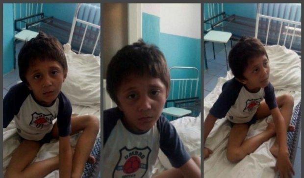 Не говорить і не ходить: у Кременчуці знайшли дитину-мауглі