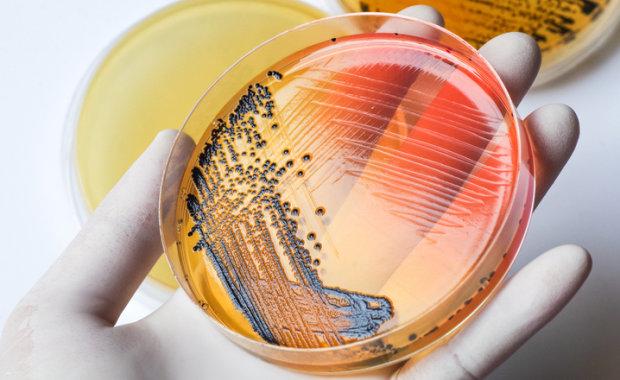 """""""Клітини-домосіди"""" допоможуть боротися з небезпечною інфекцією"""