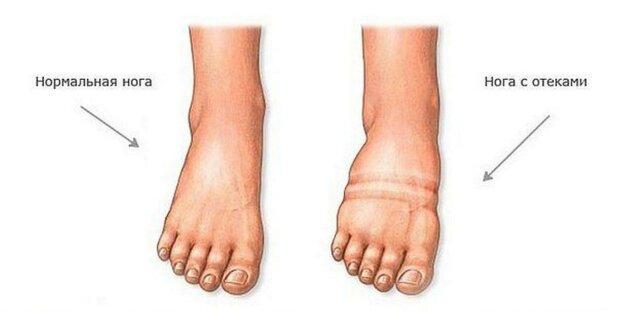 Отек ног: источник: medsklad.com.ua