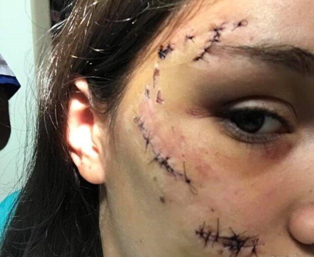 Приборкувачка собак покроково розібрала напад на дівчину і дала поради, як уберегтися від укусів