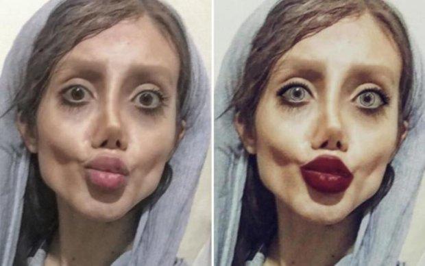 Шок! Іранська Джолі розповіла подробиці моторошної зовнішності