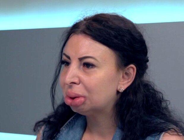 Синдром, разрушающий судьбы: украинку затравили за необычную внешность, как спасалась жертва буллинга