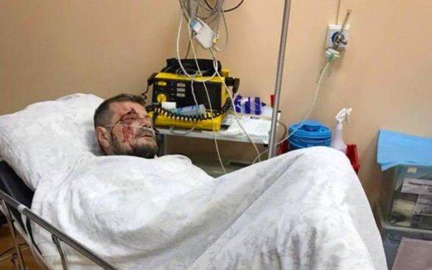 Умер раненый при покушении на Мосийчука