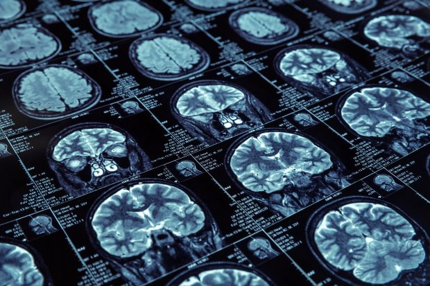 На шість років раніше: штучний інтелект навчився передбачати слабоумство