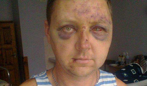Троє невідомих у Запоріжжі жорстоко побили бійця АТО (фото)