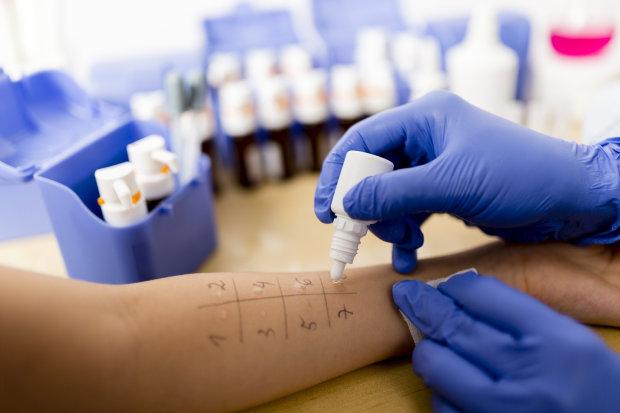 Вчені придумали швидкий спосіб виявити алергію на антибіотики по краплі крові
