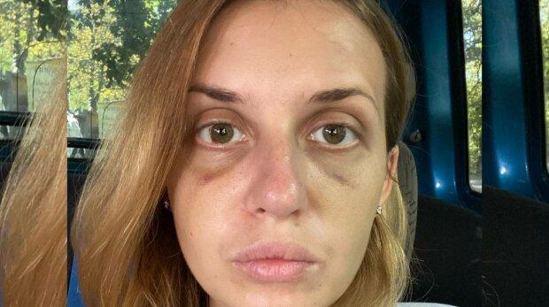 """Напавший на Настю Луговую в поезде скончался в СИЗО, пострадавшая сделала заявление: """"Страх умер вместе с ним"""""""