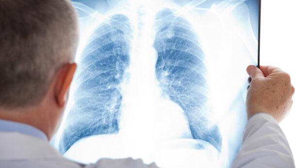 Які продукти допомагають вилікувати пневмонію: у холодильнику у кожного