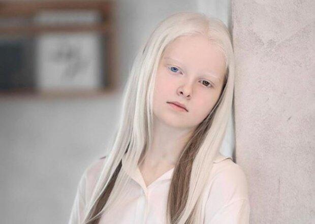 """Цій білявій дівчинці ніколи не повірять, що вона з Чечні: 11-річна """"Білосніжка"""" підкорила інтернет"""